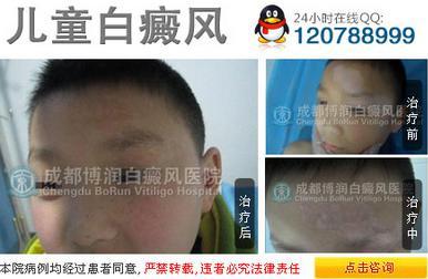 儿童白斑(白癜风)的初期症状
